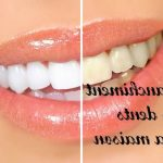 ➤ Blanchir ses dents prix dentiste (Important)