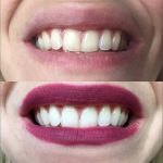 ➤ Comment blanchir les dents jaunes (Solution)