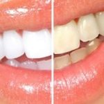 Exclu : Blanchir les dents citron et bicarbonate (Important)