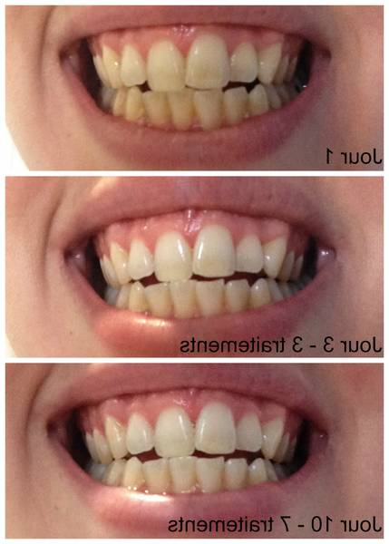 blanchir dents protheses