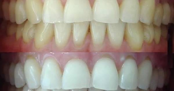 blanchiment dentaire dentiste chartres
